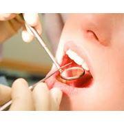 Лечение удаление зубов в Алматы фото