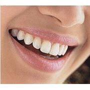 Терапия-лечение зубов фото