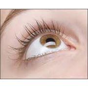 Лечение отслойки сетчатой оболочки глаза в Кишиневе фото