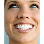 Остеоинтеграция зубного имплантата фото