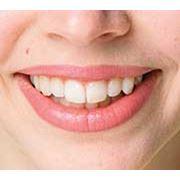 Выравнивание зубного ряда фото