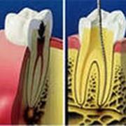 Лечение пульпита и периодонтита, перелечивание ранее леченых зубов фото
