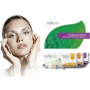 Биоревитализация кожи, гиалуроновой кислотой, Гиалуаль, Иал-систем фото