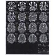 Магнитно-резонансная томография головного мозга фото