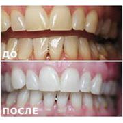 Лазерное отбеливание зубов фото