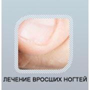 Грибок ногтя под микроскопом фото