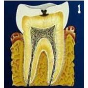 Лечение и реставрация зубов.Стоматологический кабинет ТРИО фото