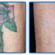Удаление татуировок лазером фото