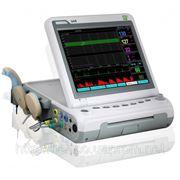 Фетальный монитор Heaco G6B+ с контролем многоплодной беременности и матери фото