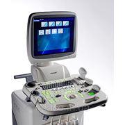 Цветной ультразвуковой сканер sonoscape SSI-8000 фото