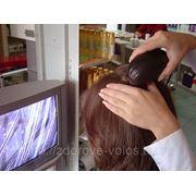 Лечение кожи головы фото