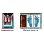 Индивидуальные ортопедические стельки фото