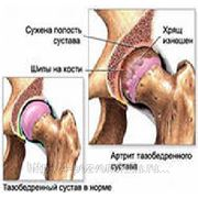 Лечение АРТРОЗА (АРТРИТА) суставов фото