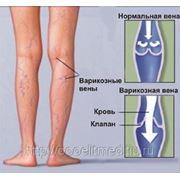 Лимфовенозная недостаточность, лечение в г.Краснодаре, препараты OTI фото