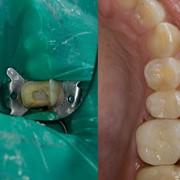 Пломбирование зубов в Алматы фото