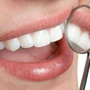 Лечение кариеса и некариозных повреждений зубов фото