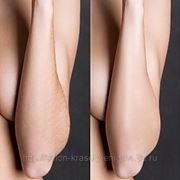 Восковая эпиляция рук фото