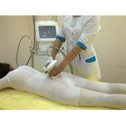 LPG массаж фото
