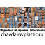 Пластическая хирургия в Воронеже фото