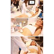 RF термолифтинг для коррекции фигуры, лечения целлюлита, безоперационной подтяжки фото
