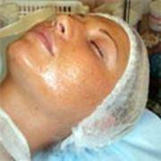 Комплексное лечение угревой болезни, сыпи