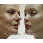 Салипиловый пилинг для лица Mediderma фото