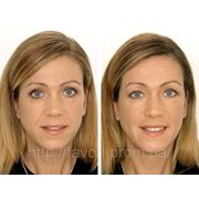 Уход за кожей лица после 50 лет. Контурная пластика гелем. Подбор косметики фото