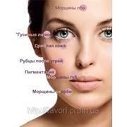 Чистка лица «Ритуал красоты» — идеально чистое лицо без покраснений Скидка 30%