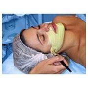 Лечение проблемной кожи в Соломенском районе Киева фото