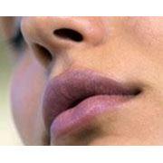 Инъекции наполнителей, контурная пластика морщин (Surgiderm, Juvederm ultra, Stilage, Restylane)