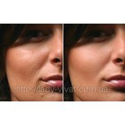 Тредлифтинг (мезонити): безоперационная подтяжка кожи лица и тела фото