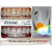 Отбеливание зубов ZOOM3 фото