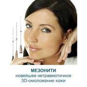 Поставить мезонити премиум класса в Киеве фото