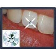 Зубные украшения — скайсы фото