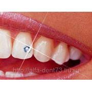 Косметическая реставрация зубов фото