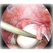 Лечение кисты яичника фото