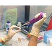 Анализ крови на простат-специфический антиген (ПСА) фото
