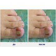 Нехирургическое удаление вросшего ногтя фото