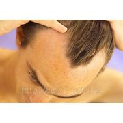 Выпадение волос у мужчин фото