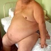 Лечение ожирения методом Акупунктурного программирования фото