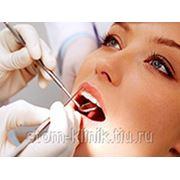 протезирование зубов,лечение зубов,удаление зубов. скидки 20% фото