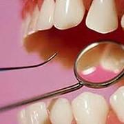 - бесплатная консультация и профилактический осмотр; - эксклюзивная, высокохудожественная реставрация зубов (изменение формы, цвета); - лечение и восстановление разрушенных зубов «приговоренных» к удалению; - протезирование зубного ряда протезами фото