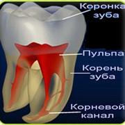 Лечение зубных каналов цена Киев. Лечим зубные каналы в Киеве. Лечение каналов зубов цена.Лечение каналов зуба. Лечения канала зуба фото