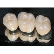Protetica dentara фото