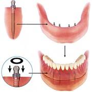 Мини-импланты по американской технологии, Стоматологические услуги, Ортопедическая стоматология фото
