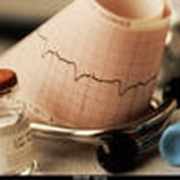 Электрокардиография (ЭКГ) фото