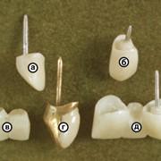 Имплантация зубов в Новосибирске фото