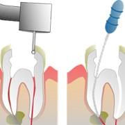Пломбирование зубного канала фото