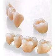 Современное протезирование зубов фото