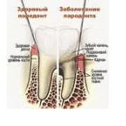 Лечение зубных каналов. Стоматологический кабинет ТРИО фото